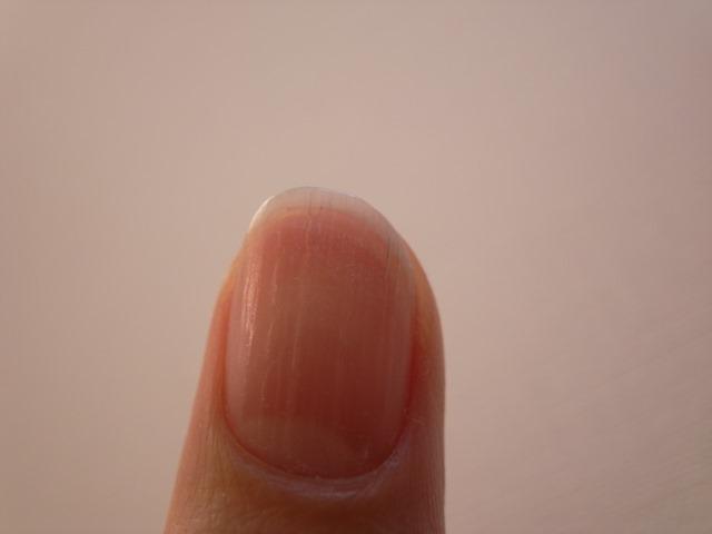 爪カサカサ乾燥縦筋